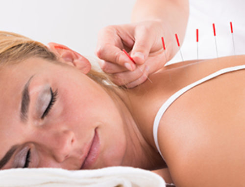 Acupuncture Benefits for Pain and Stress Brought on from the Workplace